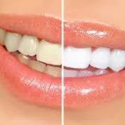 Dr. Jerry Vasilakos teeth whitening processes